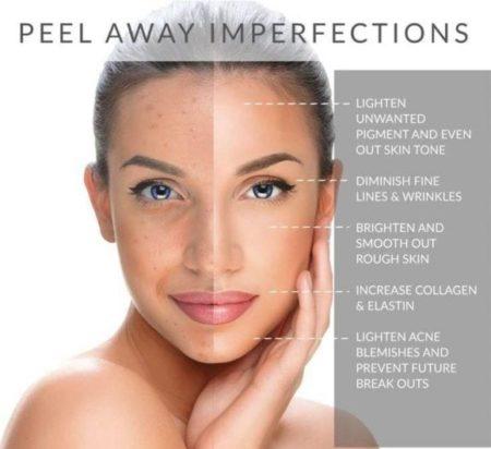 180 AHA Facial Peel